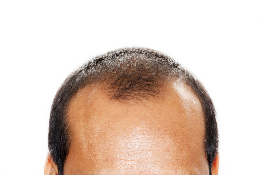 Hair loss - why does it happen and what treatment options are available